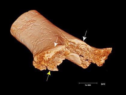 une amputation vieille de 7 000 ans