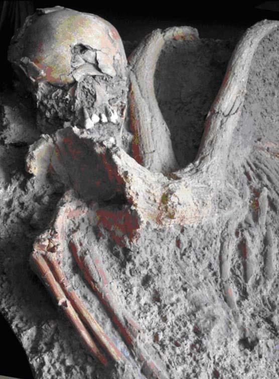Il y a 100 000 ans, traumatisme, handicap et prise en charge dans la grotte de Qafzeh (Israël)