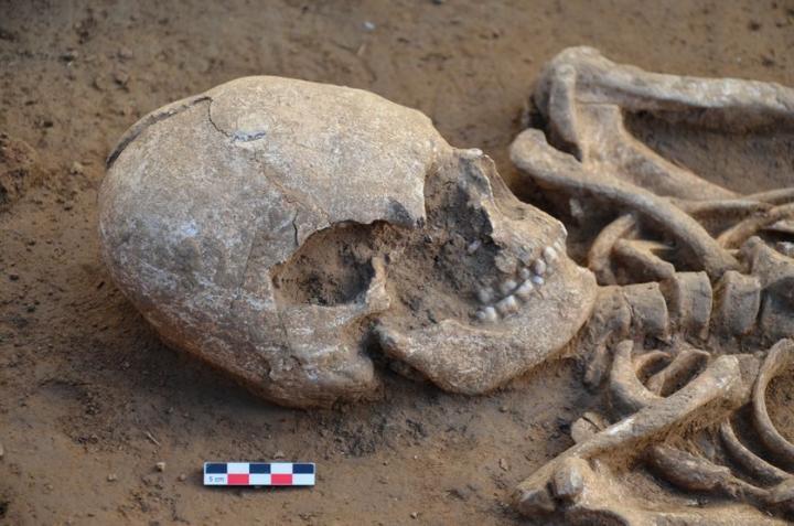 Crâne déformé d'un individu découvert dans une tombe du site de Seysses (sépulture 1046)