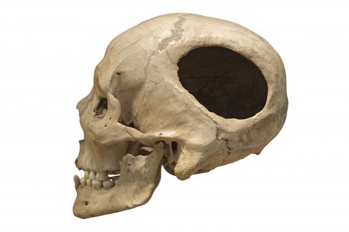 Crâne trépané estimé vieux de 4 500 à 5 000 ans