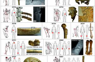 Squelettes de soldats du siège de Rennes en 1491 Colleter_et_al_article_2