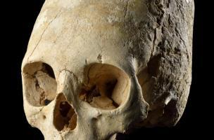 Crâne humain déformé, découvert à Obernai (Bas-Rhin), fin du IVe-début du Ve siècle. Cette pratique volontaire consiste à le ligaturer dès le jeune âge, à l'aide de planchettes et de bandages, comme en Asie centrale chez les Huns ou les Alains. Elle est a