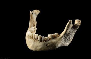 Mâchoire inférieure d'un crâne humain déformé, découvert à Obernai (Bas-Rhin), fin du IVe-début du Ve siècle. Cette pratique volontaire consiste à le ligaturer dès le jeune âge, à l'aide de planchettes et de bandages, comme en Asie centrale chez les Huns