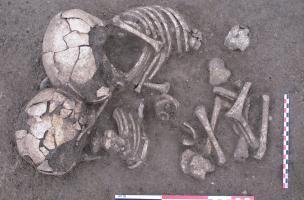 Sépulture double de jeunes enfants sur le site des Queyriaux à Cournon-d'Auvergne (Puy-de-Dôme) datée du Néolithique moyen ou du Bronze moyen, 2011.  Le contact des deux têtes et le fait que les membres inférieurs du sujet de gauche soient placés entre le
