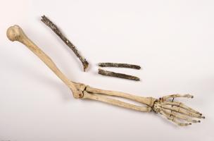 Les 3 os longs du bras gauche d'un pré-Néandertalien (humérus, cubitus et radius) en regard d'un bras moderne retrouvé sur le site de Tourville-la-Rivière (Seine-Maritime) en 2010.  L'individu de Tourville-la-Rivière est une découverte majeure en Europe p