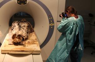 Scanner d'un corps exceptionnellement bien conservé découvert dans un cercueil de plomb mis au jour au couvent des Jacobins, à Rennes (Ille-et-Vilaine), 2015.  Un premier scanner du corps entier habillé est réalisé (ImagET, Mordelles, 35) pour évaluer le