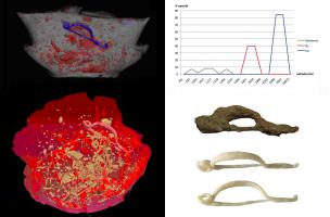 Tomodensitométrie incinération et impression 3D fibule
